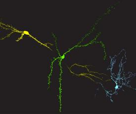 Source nsf.gov: Credit: Marina Maksimova and Julian Meeks, Department of Neuroscience, UT Southwestern Medical Center